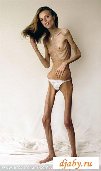 Анорексия делает сучек страшными