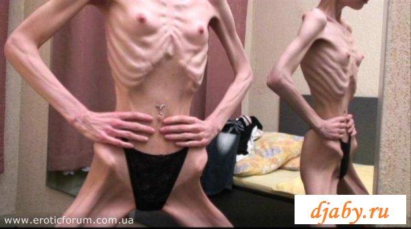 Устрашающее зрелище с обнажёнными анорексичками